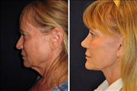 Verticle Facelift Sample Picture 1