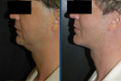 Male Facelift Sample Picture 1