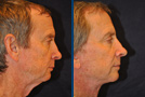 Male Facelift Sample Picture 2