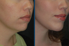 Neck and Facelift Sample Picture 1