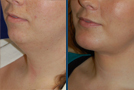 Neck and Facelift Sample Picture 2