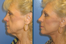 Verticle Facelift Sample Picture 2